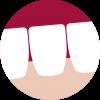 Trastornos del complejo articular Temporo Mandibular